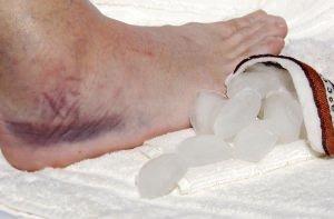 soft-tissue-injury